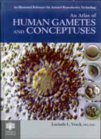 Atlas of human gametes and conceptuses by Lucinda Veeck. Pathenon